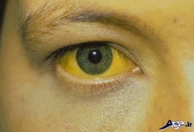 علایم بیماری هپاتیت