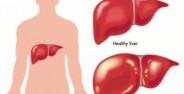 علایم و نشانه های هپاتیت