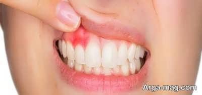 روش های درمان آبسه دندان