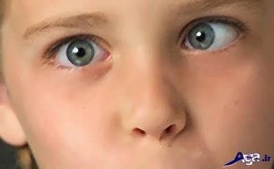 انحراف چشم و دلایل آن