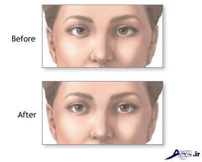 درمان انحراف چشم