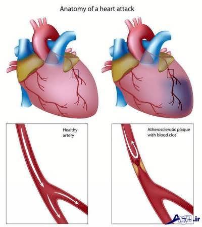 درمان گرفتگی رگ قلب