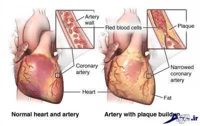 رگ قلب و درمان