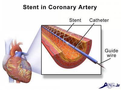 درمان رگ قلب