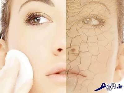 ماسک های مفید برای رفع خشکی پوست