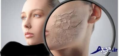 معرفی انواع ماسک های تاثیر گذار برای پوست خشک