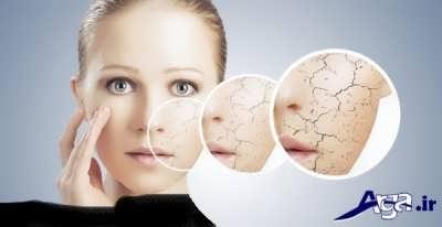 معرفی انواع ماسک های خانگی برای درمان پوست خشک