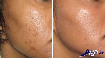 انواع ماسک طبیعی برای درمان لک صورت