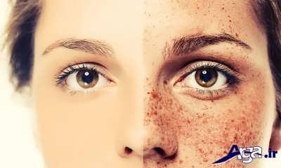 ماسک لک صورت برای انواع پوست ها