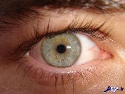 چشم و بارداری