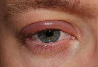 درمان عفونت چشم