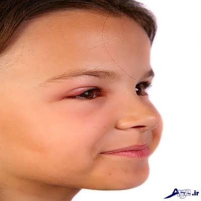 علایم عفونت چشم