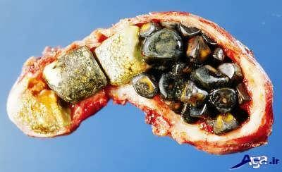 درمان سنگ کیسه صفرا