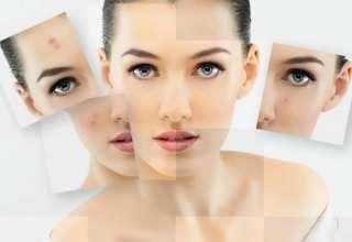 درمان حساسیت پوست