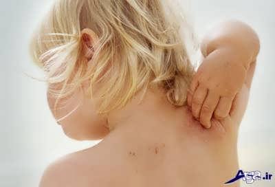 درمان خارش پوست