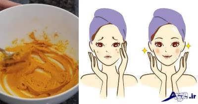 زردچوبه برای درمان حساسیت پوست
