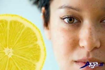 ماسک لیمو ترش برای از بین بردن کک و مک