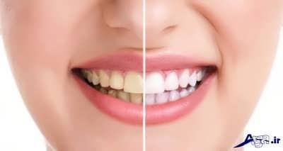 خواص فوق العاده سرکه برای دندان و دهان