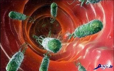 آشنایی با روش های پیشگیری میکروب معده
