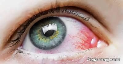 روش تشخیص علت سوزش چشم