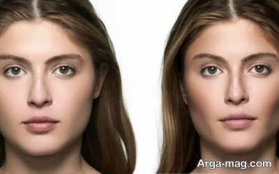 درمان چاقی صورت با چند ترفند