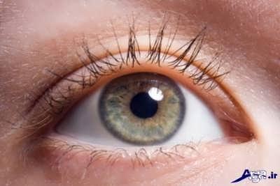 عوارض چشمی دیابت