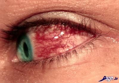 آشنایی با روش های درمان سوزش چشم