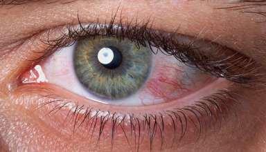 علت سوزش چشم و روش های درمان آن