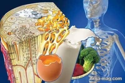 نشانه های از بیماری پوکی استخوان