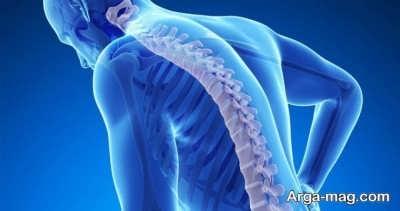 بررسی عوارض پوکی استخوان