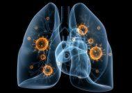 درمان گیاهی عفونت ریه