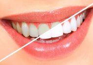 راه های سفید شدن دندان