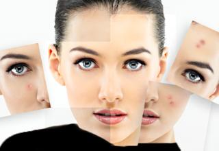 از بین بردن جوش صورت با روش های گیاهی و خانگی