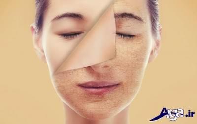 عوارض پوستی
