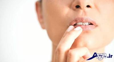 درمان سریع تبخال یا روشهای خانگی