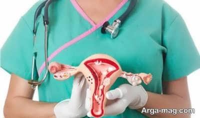 بررسی علل تنبلی تخمدان