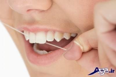 مهمترین علت بوی بد دهان