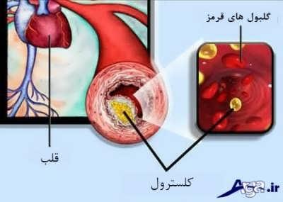 علایم چربی خون در بدن