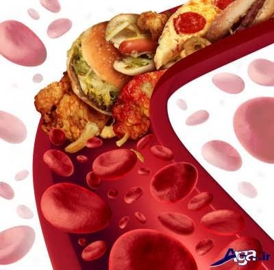 علت چربی خون در بدن
