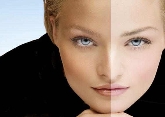 سفید کردن پوست سبزه با روش های طبیعی
