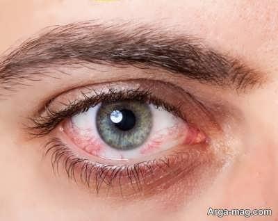 نشانه ها و علائم خشکی چشم ها