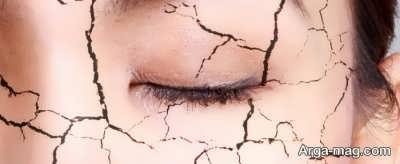 عوامل کاهش تولید اشک و خشکی چشم