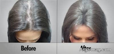 علت ریزش موی سر و موثرترین راه درمان آن