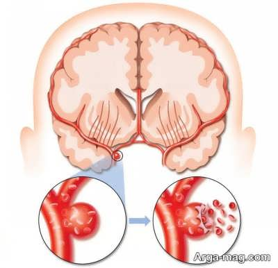 علایم و نشانه سکته مغزی هموراژیک