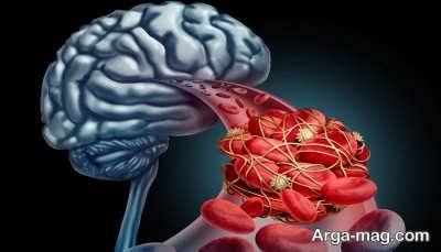 عواملی که خطر ابتلا به سکته مغزی را افزایش می دهد