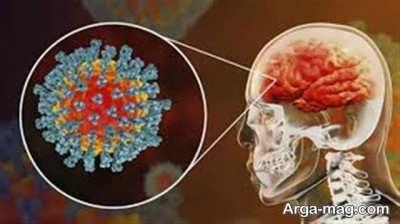 بررسی عوارض جانبی سکته مغزی