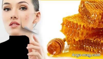 ماسک عسل برای درمان جوش صورت