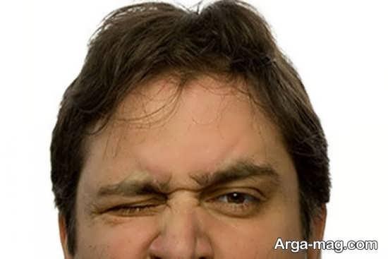 آیا پرش پلک درمان دارد؟