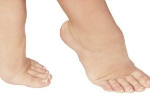 علت ورم پا و روشهای معالجه آن