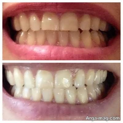 خاصیت سفید کردن دندان با جوش شیرین